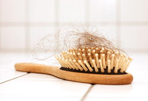 Nadměrné vypadávání vlasů trápí hodně lidí. Co s tím?